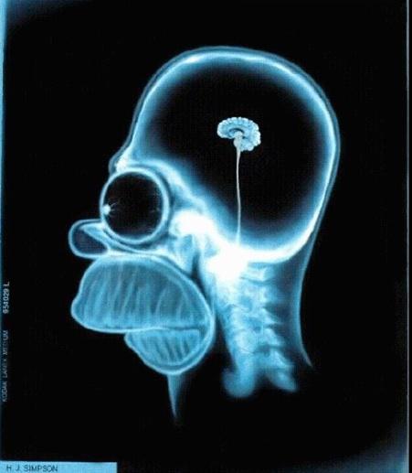 Homer_simpson_brain_2